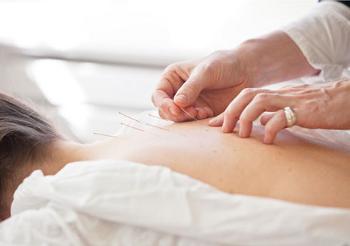 akupunktur-tcm